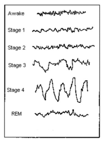 brain waves of different sleep stages